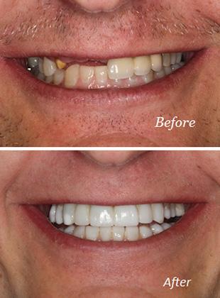 Dental bridges/replacements