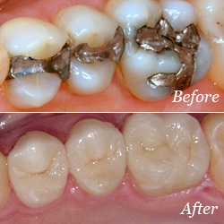 Crowns dentistry