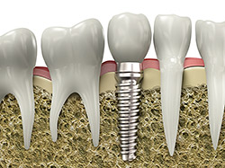 Dental implants are versatile