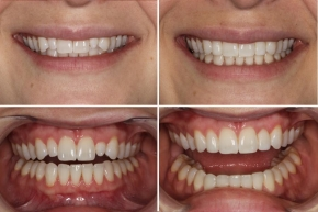 Invisalign with Minor Aesthetic Gum Surgery and Resin Restorations