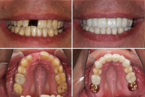 Jaw Re-Alignment, Dental Crowns and Implants, Full Mouth Rehabilitation