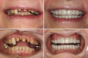 Porcelain Crown Restorations Bridges and Dental Implants