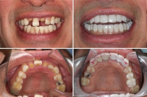 Teeth Replacement. Implants and Full Restoration