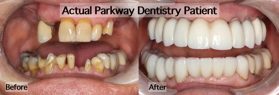 Before after TMJ rehabilitation treatment example