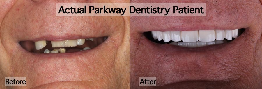 Before after mouth rehabilitation treatment example