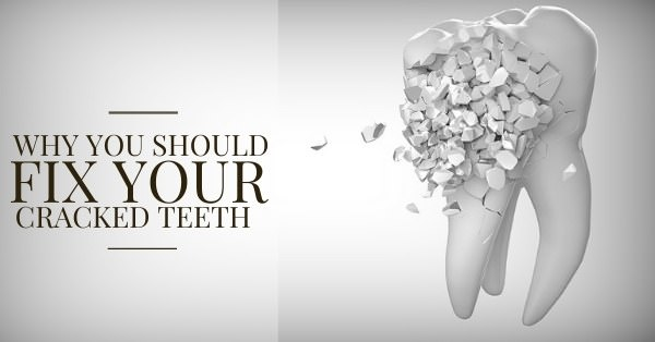 why-you-should-fix-your-cracked-teeth