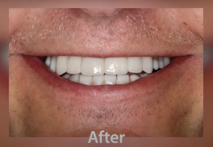 Mouth with dental implants